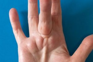 Dupuytrens Contracture Symptoms