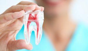 Endodontics New Jersey